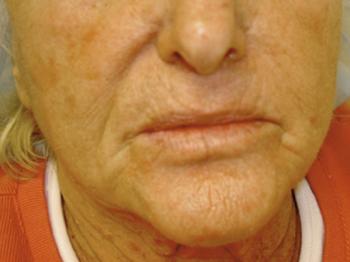 huidaandoening-huidverjonging