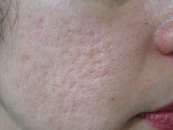 huidaandoening-littekens-acne