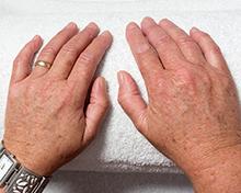 huidaandoening-pigmentproblemen